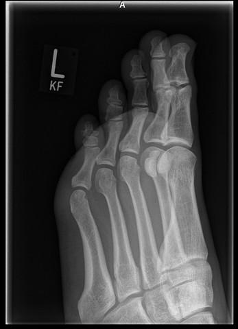Röntgen von schräg oben - (Sport, Medizin, Arthrose)