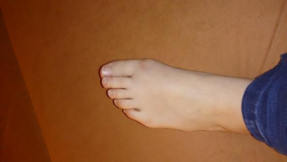 Bild 1 - (Schmerzen, Füße, Zeh)