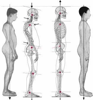 Vorher Nachher Beispiel - (Gesundheit, Haltung, Rückenschule)