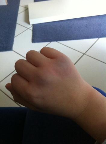 Hand Angebrochen Kann Es Nicht Einschätzen Schmerzen Gebrochen