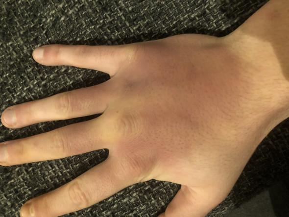 - (Arzt, Hand, Blauer fleck)