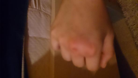 Hand geschwollen - (Schmerzen, Hand)