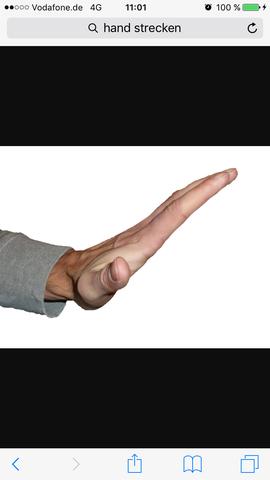 Hand lässt sich nicht mehr ganz bewegen nach Sturz? (Gesundheit ...