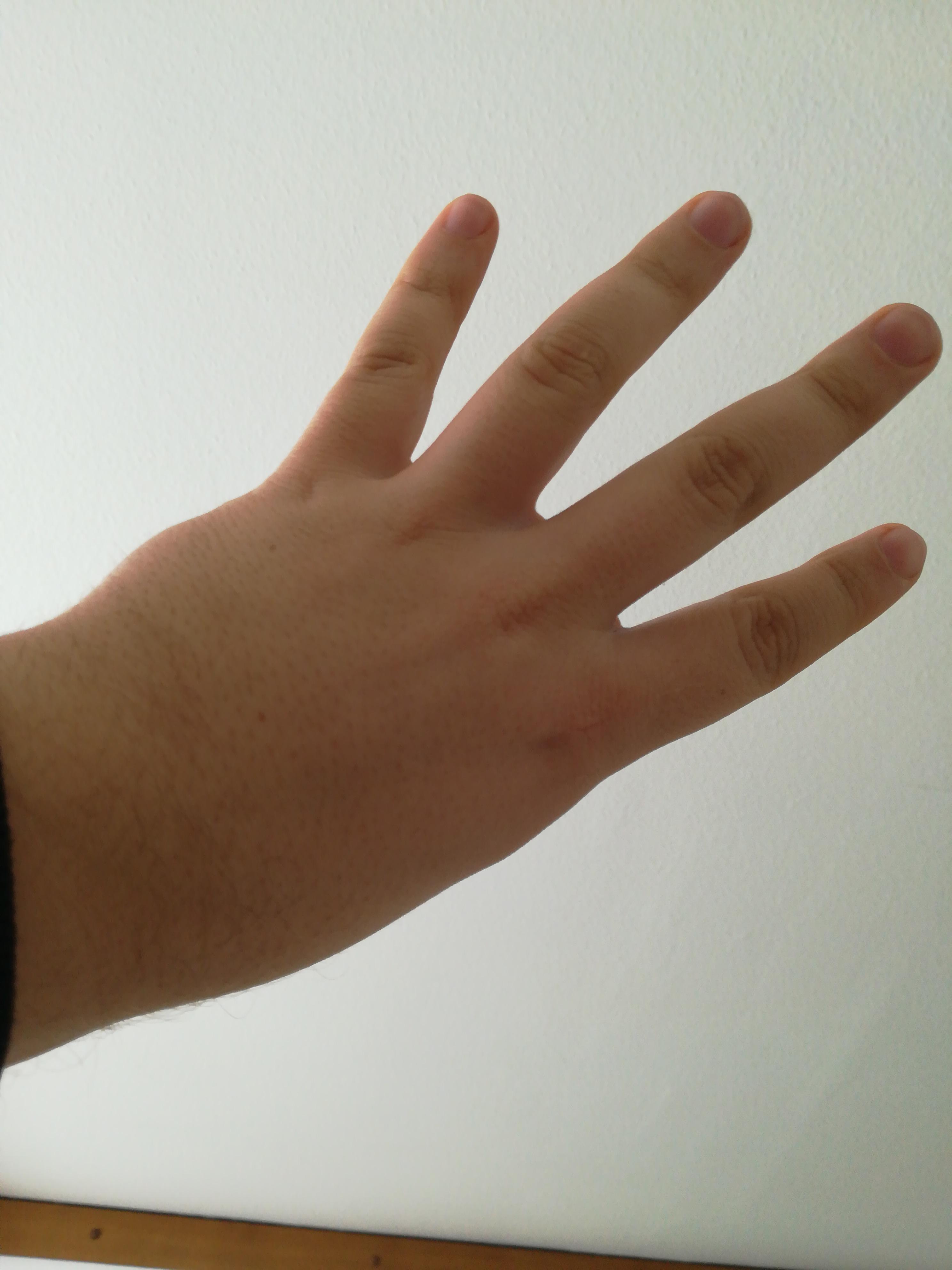 Daumen Eine Hand Taubheitsgefühl in