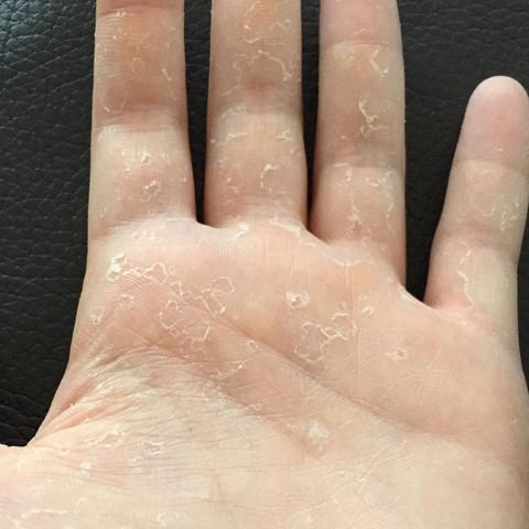 Hand schält sich (Vegetarier)? (Gesundheit und Medizin