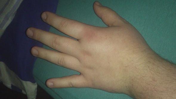 Hand schmerzt nach Sturz zum Arzt? (Schmerzen, Prellung)