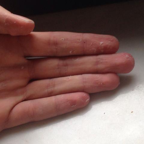 Pro finger so um die 7 - (Hand, Blase)