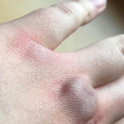 Kapselriss finger Finger ausgekugelt