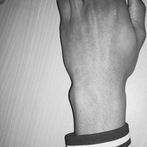 Déformation - (Arzt, Hand, orthopäde)