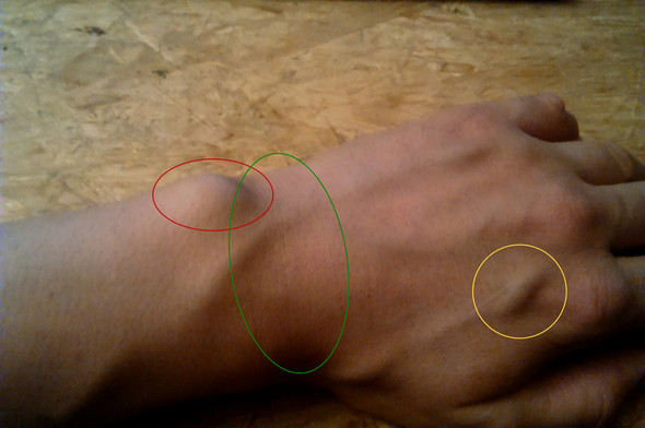 Handgelenk Verstaucht Geprellt Gebrochen Verletzung