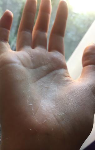 So sieht das seit wenigen Tagen wieder aus - (Dermatologie, pilzinfektion)