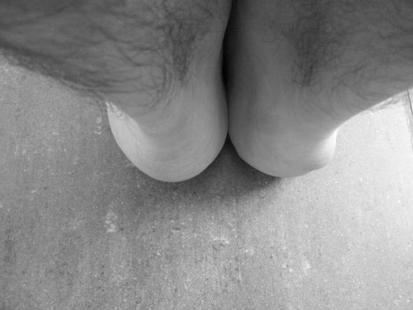 Beule am rechten Fuß - (Arzt, Beule, Ferße)