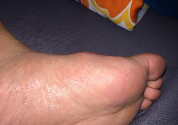 Bild 2 - (Arzt, Operation, Füße)