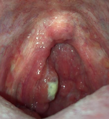 Halsschmerzen Gaumen