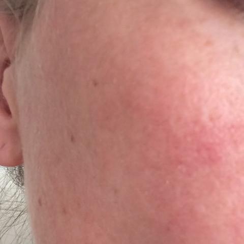 Flecken im Gesicht  - (Gesicht, sonnenallergie)