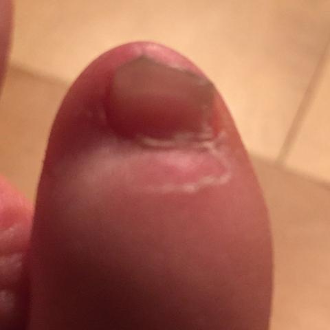 Trocken - (Haut, Füße)