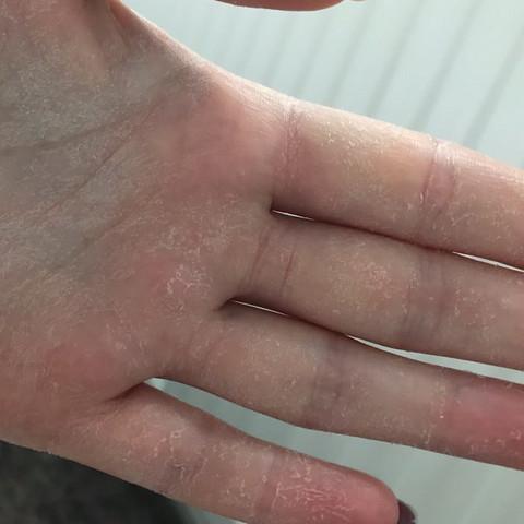 Haut an den Handinnenflächen pellt sich was tun?