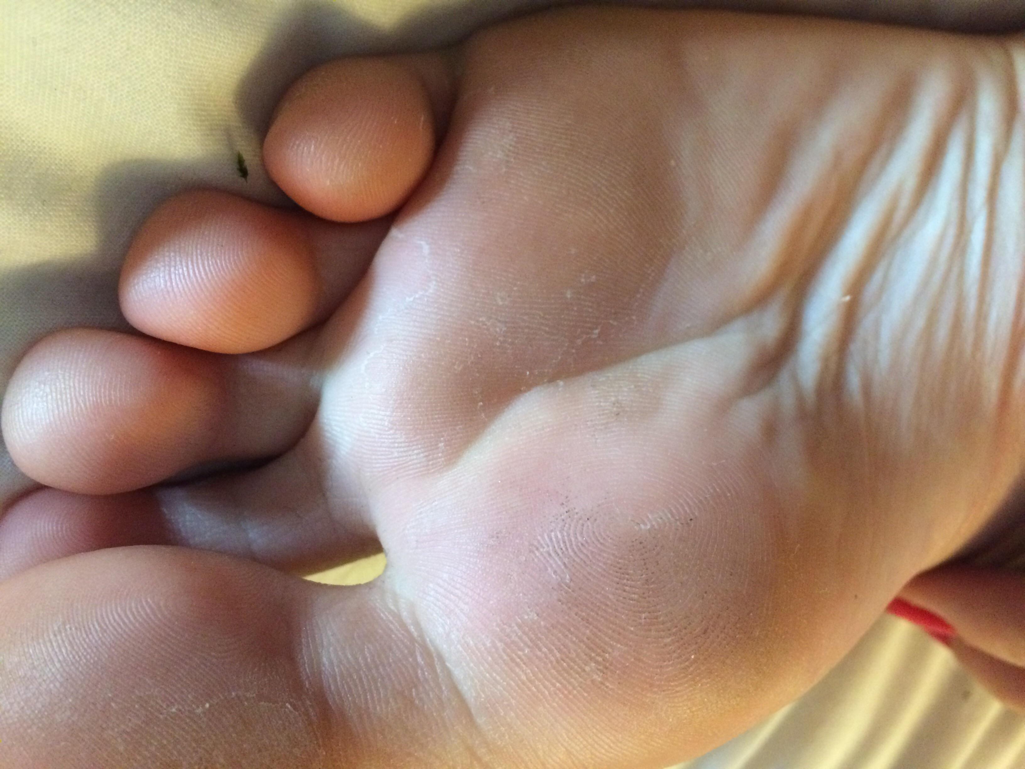 Füße Hornhaut