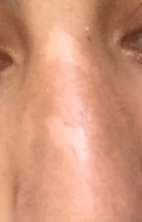 Haut nase trockene Schuppen und