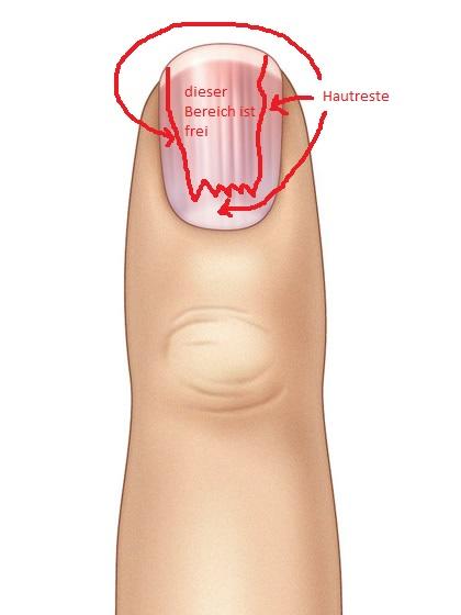 Das beste Mittel von gribka der Nägel der Hände