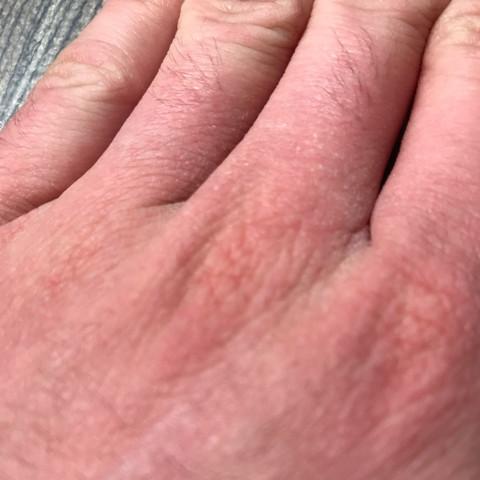 Bild 1 - (Gesundheit und Medizin, Haut, Hand)