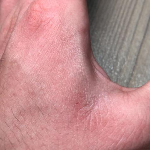 Bild 2 - (Gesundheit und Medizin, Haut, Hand)