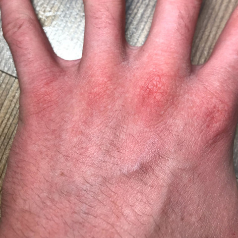 Bild 3 - (Gesundheit und Medizin, Haut, Hand)