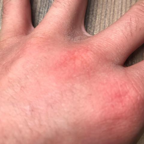 Bild 4 - (Gesundheit und Medizin, Haut, Hand)