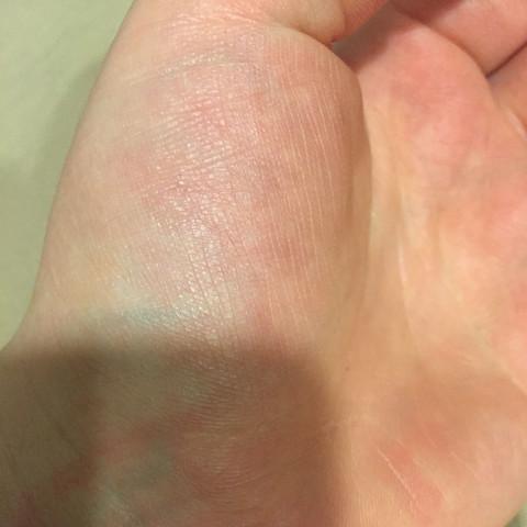 Hand.. - (Hand, Flecken, Arm)