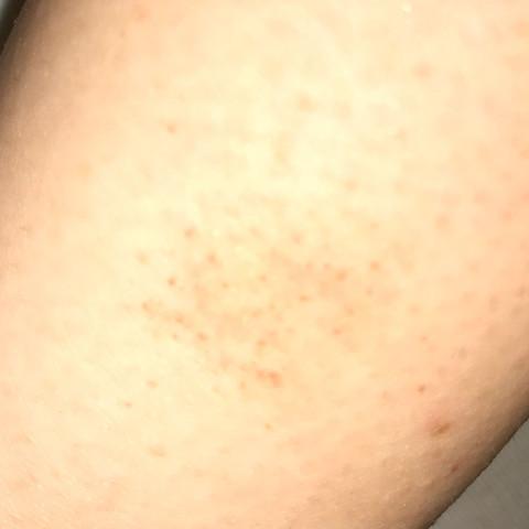 Bild 2 - (Krankheit, Haut)