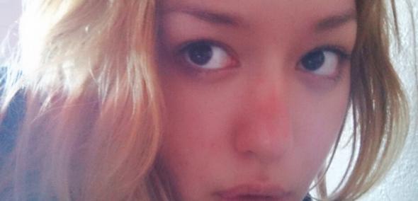 Nase verbrannt  - (Haut, verletzt, Peeling)