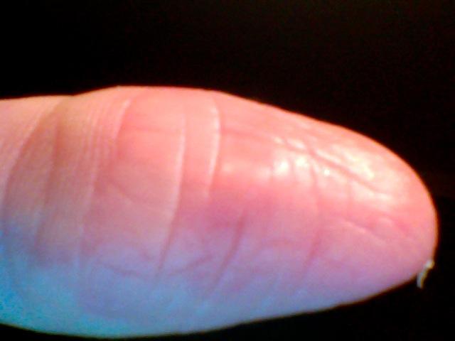 haut pellt sich st ndig an fingern und handfl chen und heilt nicht rote punkte an zehen was ist. Black Bedroom Furniture Sets. Home Design Ideas