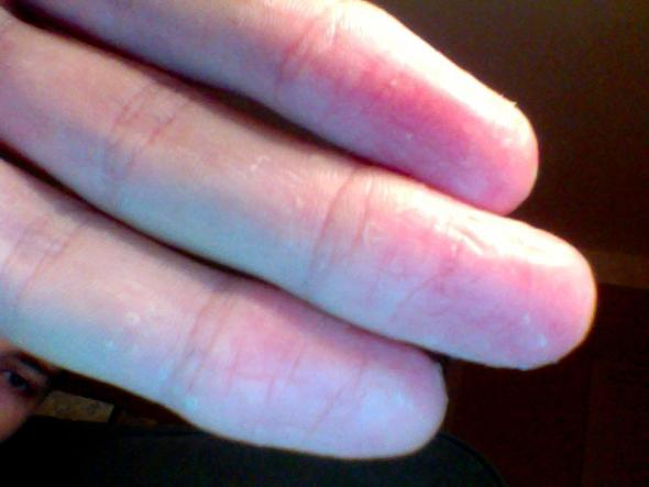 Finger Pellen Sich
