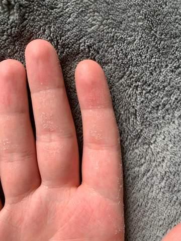 Haut sehr trocken nach Putzen?