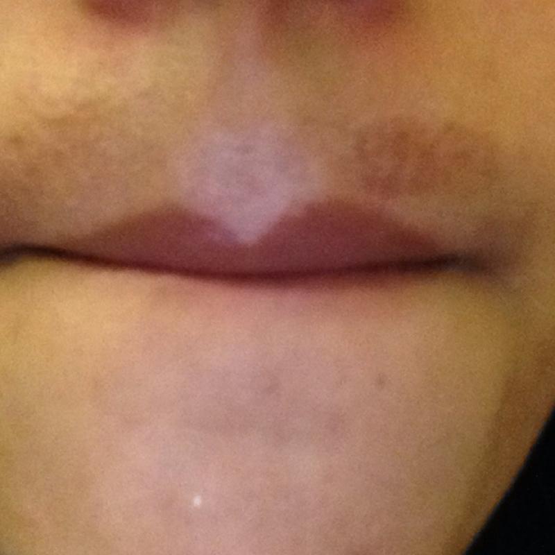 Gesichtsbehaarung über Der Lippe