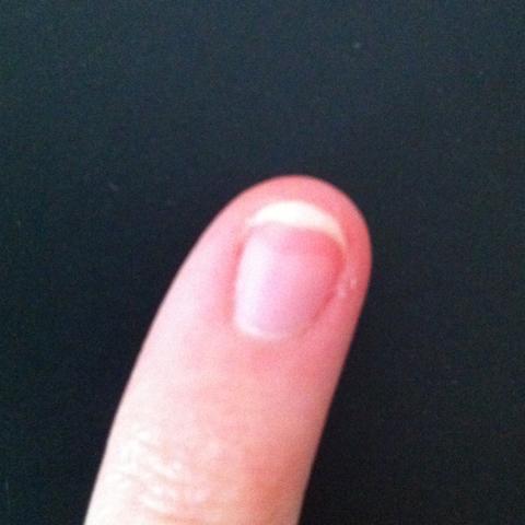 Haut Unter Fingernagel Dunkel Bzw Rot (Fingernu00e4gel Verfu00e4rbung)