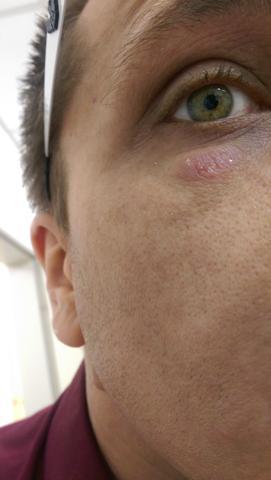 Hautausschlag am arm und unterm auge.. angst um hiv