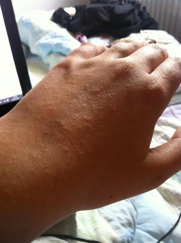 Handrücken  - (Medizin, Krankheit, Haut)