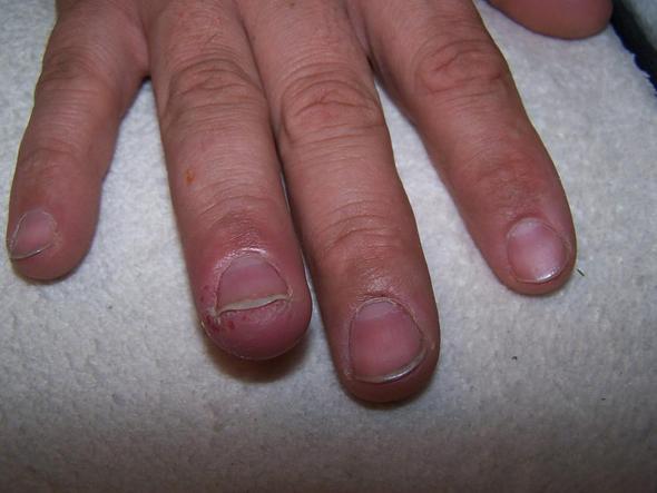 Finger - (Medizin, Hautkrankheit)