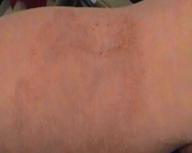 Hautveränderung Innenseite Ellenbogen - (Allergie, hautpilz, Alternative Medizin)