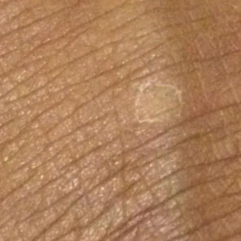 Foto 2  - (Hauterkrankung, Hautpilzkrankheit Haut )