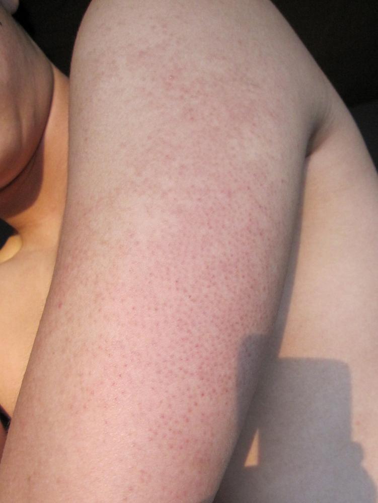 Hautirritationen am Oberarm (Körper, Haut)
