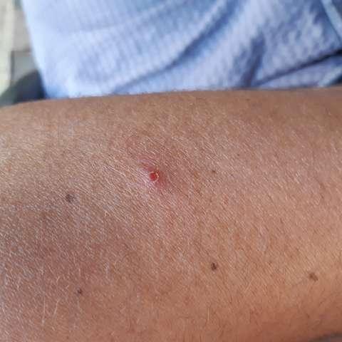 Hautkrebs am Arm? (Krebs)