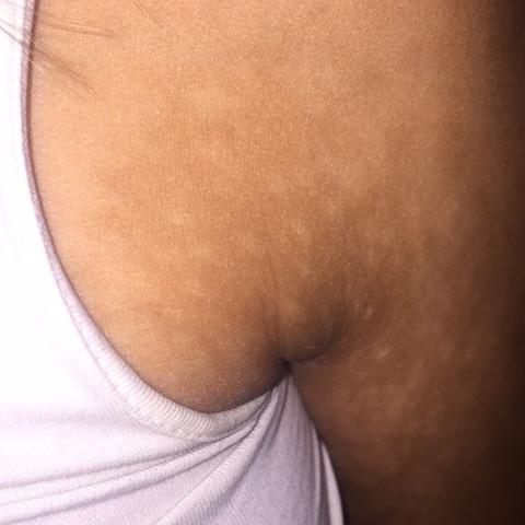 Das sind die Flecken am Arm Richtung Achsel.  - (Gesundheit und Medizin, Flecken, Pilze)