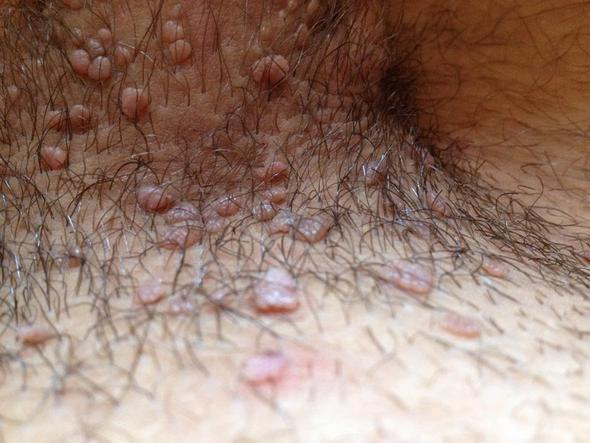 Rasierter Venushügel