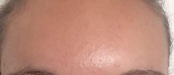 Hautunreinheit loswerden?