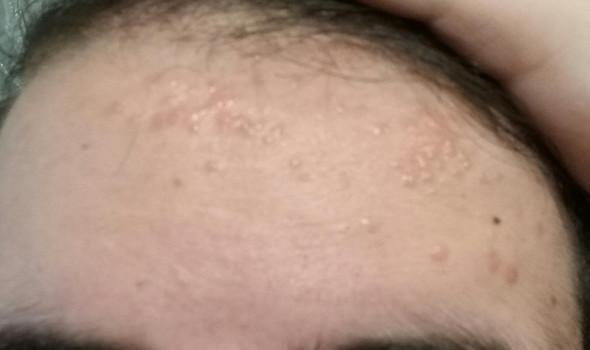 stirn - (Krankheit, Haut, Blasen)