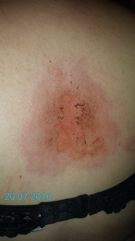 Heftige Allergische Reaktion Allergie Hautarzt Lymphknoten