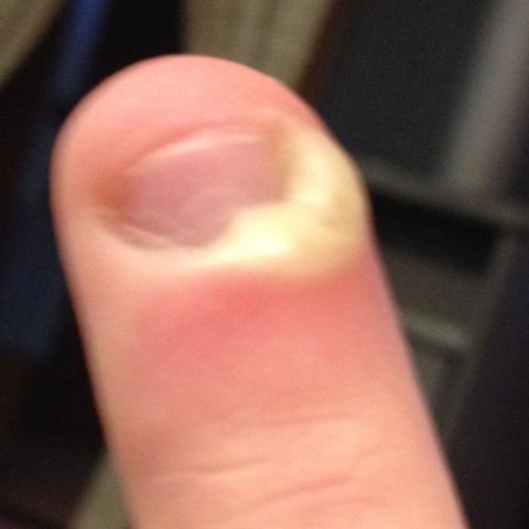 Mein Finger - (Arzt, Schmerzen, EntzÜndung)