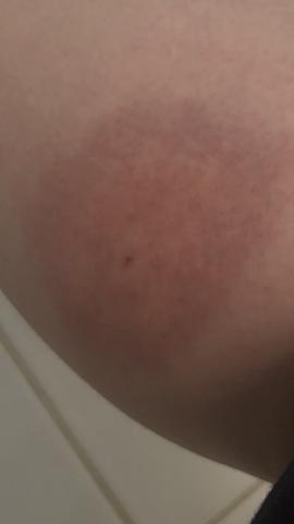 Heftigen Mückenstich?